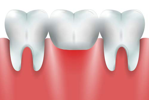 Dental Bridges - Cosmetic Dentistry Bloor - Toronto dentist - Bloor Dental Health