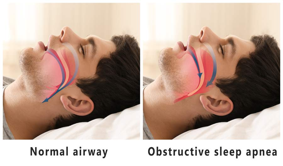 Sleep Apnea - Bloor Dental Health Centre Toronto